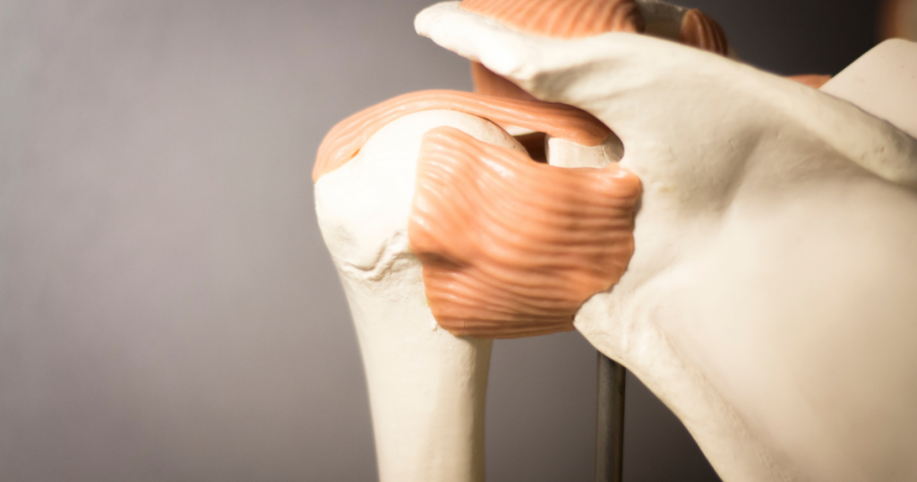 קרע טראומטי של השרוול המסובב בכתף